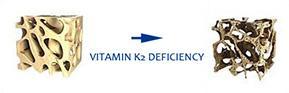 Health Benefits - Vitamin K2(MK-7) - SUNGEN BIOTECH | Extrakinase,Natto K2™,Probiotics,OEM Service