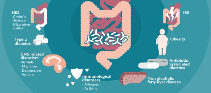 Gut Health   Winclove Probiotics
