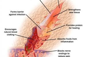 Wound Healing | Primex