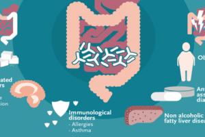 Gut Health | Winclove Probiotics