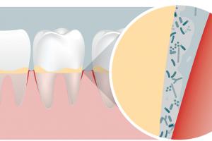 Oral health   Winclove Probiotics